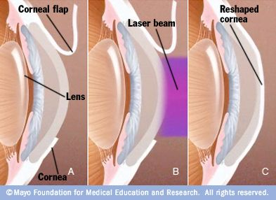 Great illustration of LASIK eye surgery... no uncomfortable videos, just a nice, little graphic.