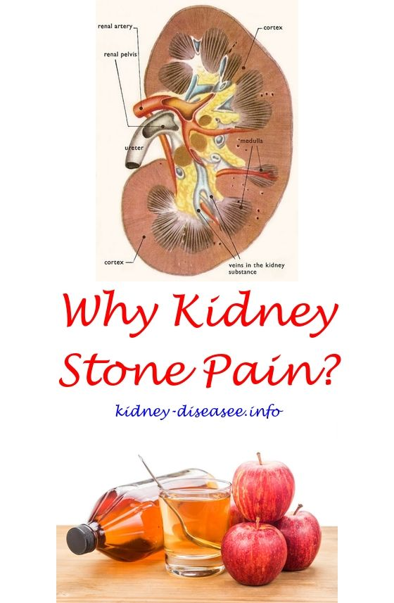 organ procurement - medullary sponge kidney.renal diet lunch 4577549633