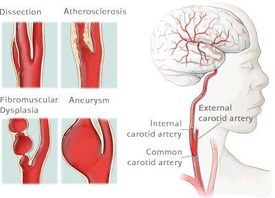 Vascular radiology study guide