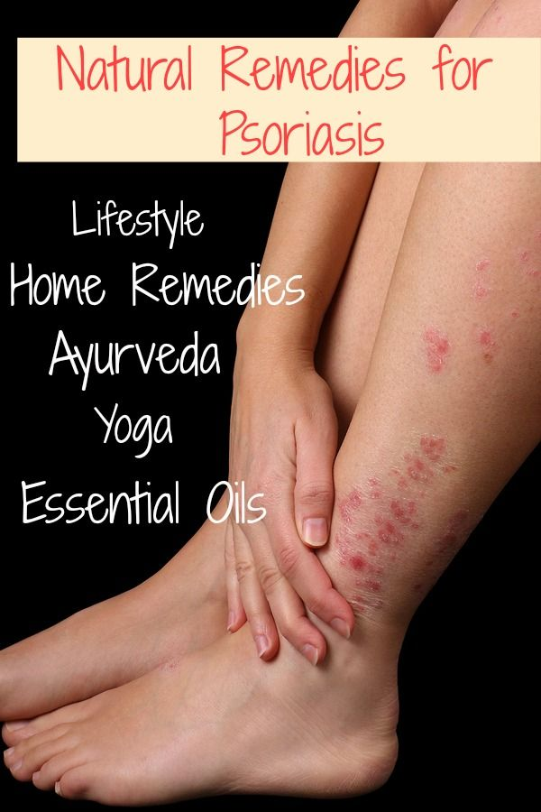 The Best Natural Remedies for Ayurveda Lifestyle, Home Remedies, Ayurveda, Yoga, Essential Oils #MotherOfHealth #Psoriasis