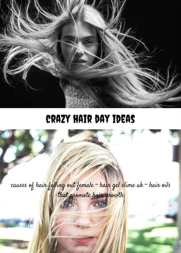 Crazy Hair Day Ideas 174 20180717083203 30 Hair Implants Video
