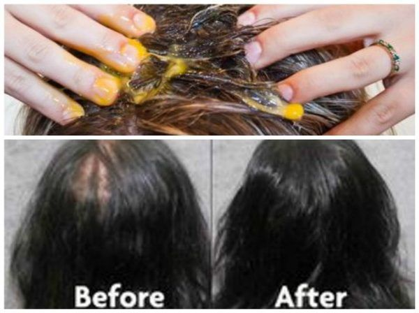 With This Recipe Of Just 3 Ingredients Your Hair Will Stop Falling And Begin To Grow Like Crazy – Natural Medicine Box
