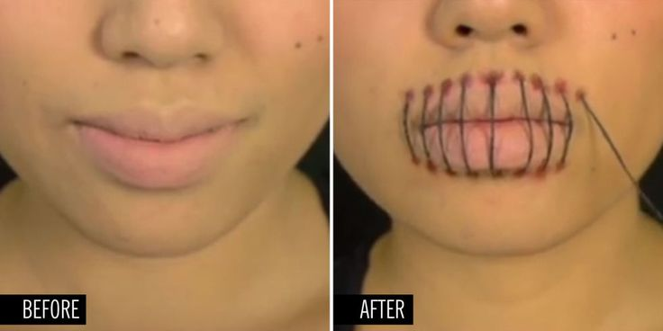 SUPER-CREEPY STITCHED MOUTH: Recreating this ~*sPoOkY*~ Halloween makeup look is way easier than you think! YouTuber Promise Phan breaks it down in this tutorial. Click here to watch and get inspired!