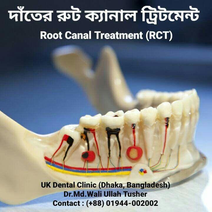 Root Canal Treatment Uk Dental Clinic | Uk Dental Clinic World ...