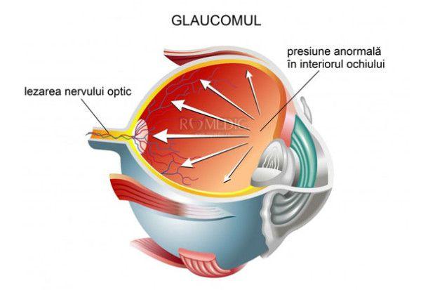 Glaucomul cronic simplu poate duce la pierderea vederii