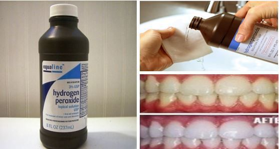24-Incredible-Facts-Why-Hydrogen-Peroxide-Should-Be-In-Every-Home