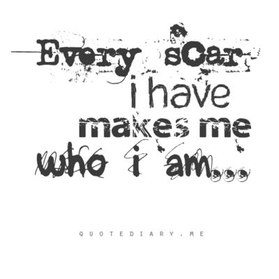 I have added a few scars recently but every one of them comes with a story that I am glad to be part of my past.
