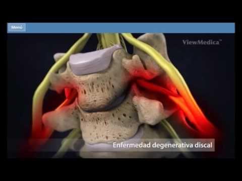 Aula Medicina USP: Radiculopatias - Dr. Daniel C. Pimentel - médico especialista em coluna - YouTube
