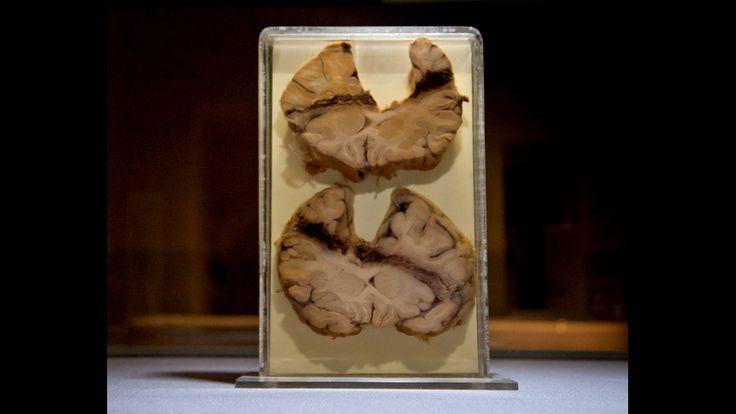 Mostra transforma investigação forense em arte