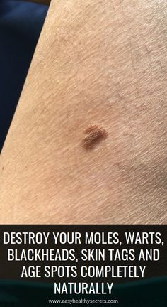 Skin problems such as moles, acne or warts are a c…