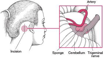 Glossopharyngeal Neuralgia: Cranial Nerve Disorders: Merck Manual Home Edition