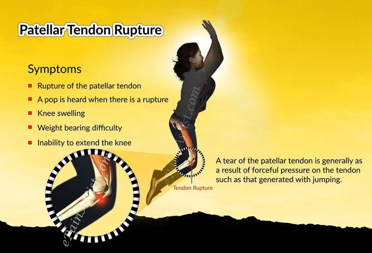 Symptoms of Patellar Tendon Rupture or Patellar Tendon Tear Read: http://www.epainassist.com/sports-injuries/knee-injuries/patellar-tendon-rupture-or-patellar-tendon-tear
