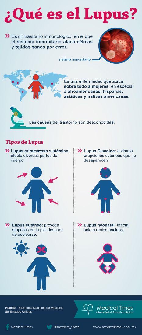 ¿Qué es el Lupus? Medical Times, Infografía médica