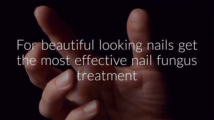 https://www.youtube.com/watch?v=Q2y31eBiuQ4    Are you suffering from nail fungus? Do you want to get rid of nail fungus for good? If so then check out this nail fungus treatment video