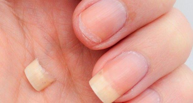 Le unghie fragile: 7 abitudini che portano a risultati spiacevoli ... | Per Dimagrire