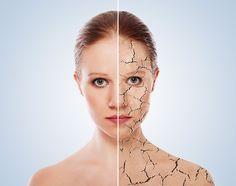 Effektive Hausmittel gegen rissige Haut und trockene Lippen           (Quelle: Wiki)       Die richtige Pflege bei trockener bis rissige...