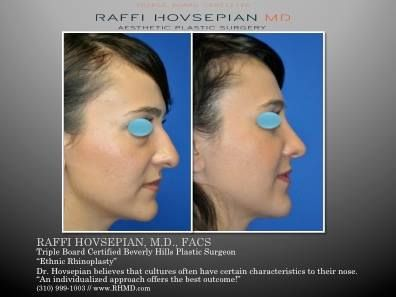 Triple Board Certified Plastic Surgeon Dr. Raffi Hovsepian's Before & After of a…