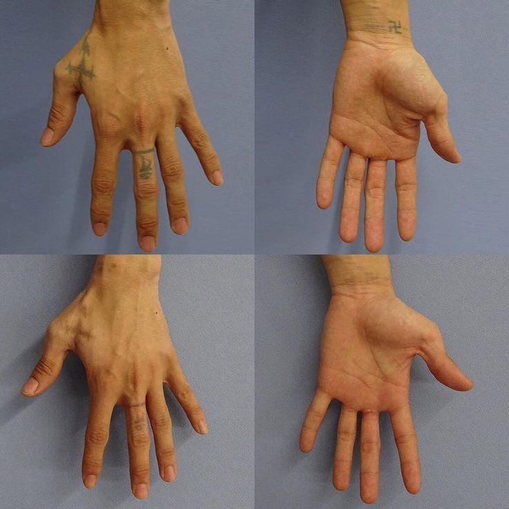 20代の男性。 手のタトゥー除去のため、 ピコレーザー(PicoSure)を まずは1回照射させていただき、 2か月後の経過(写真下)。 #tattooremoval #tattoo #laser #picolaser #picosure #aesthetic#aestheticsurgery #cosmetic #cosmeticsurgery #タトゥー #タトゥー除去 #刺青 #刺青除去 #レーザー #ピコレーザー #整形 #プチ整形 #肌 #墨 #仙台 #美容外科 #仙台美容外科 http://ameritrustshield.com/ipost/1554268578533163131/?code=BWR3wmNBUB7