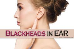 7 ways to get rid of blackheads in ear fast & natu…