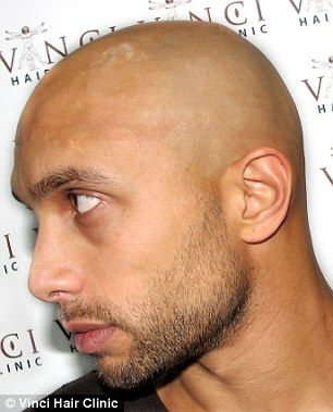 The procedure, called Micro Scalp Pigmentation, works by placing tiny particles of pigment...