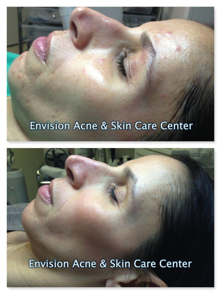 acne adult nj