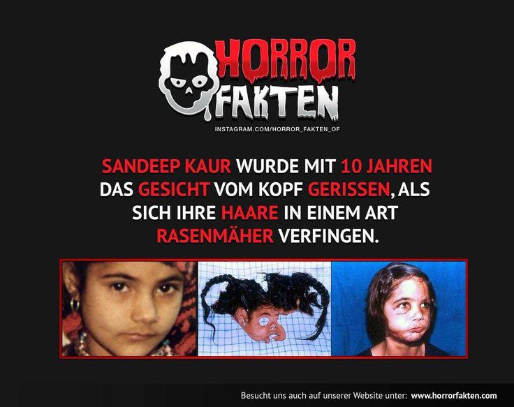 Sandeep Kaur - Gesicht vom Rasenmäher abgerissen