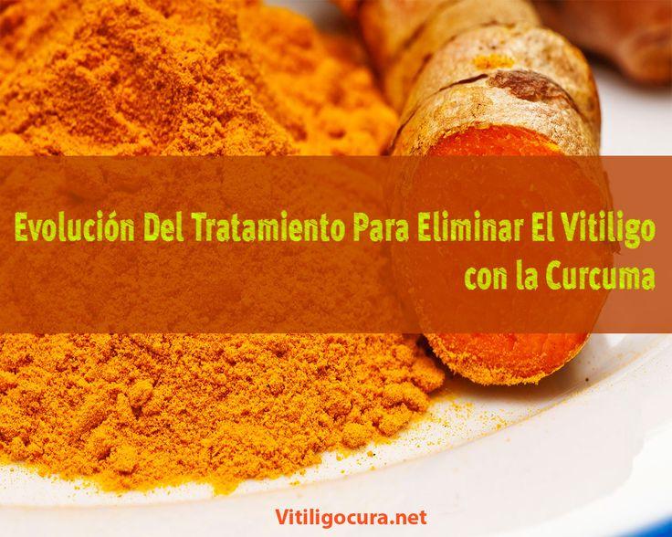 Exclusivo – evoluciondel tratamiento para eliminar el vitiligo, La curcuma   Vitiligo Cura