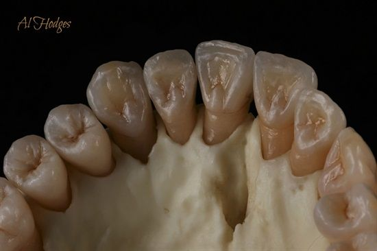 Emax cores layered w/ GC's LiSi by Al Hodges CDT Dentaltown Message Board Cosmetic Dentistry http://www.dentaltown.com/MessageBoard/thread.aspx?s=2&f=101&t=240840&pg=1&r=3667462.   #LithiumDisilicateEmax #Emax #GC  #Dentist #CosmeticDentistry #Dental #DentalStudent #DentalContinuingEducation #DentalLearning #DentaltownCE