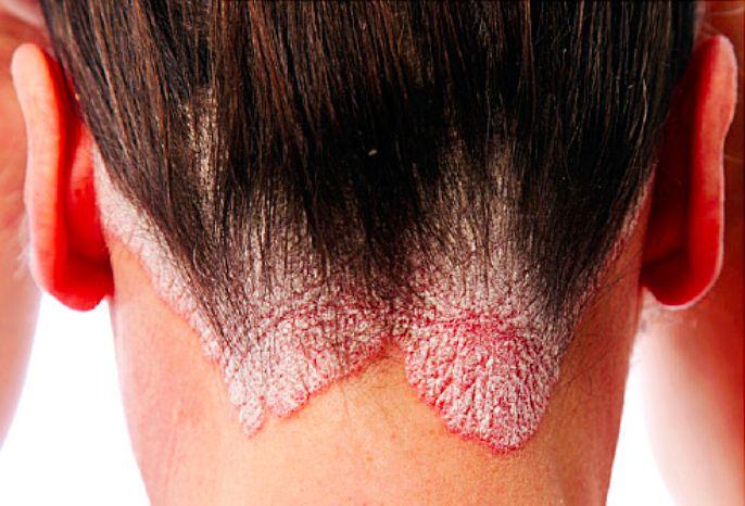7 remèdes efficaces et naturels contre le psoriasis noté 4.2 - 35 votes Le psoriasis, est une maladie de peau chronique se manifestant par plaques rouges recouvertes de squames ( écailles) blanchâtres. Cette maladie est liée à une inflammation de l'épiderme qui atteint généralement 2 à 3 % de la population française. Elle est due …