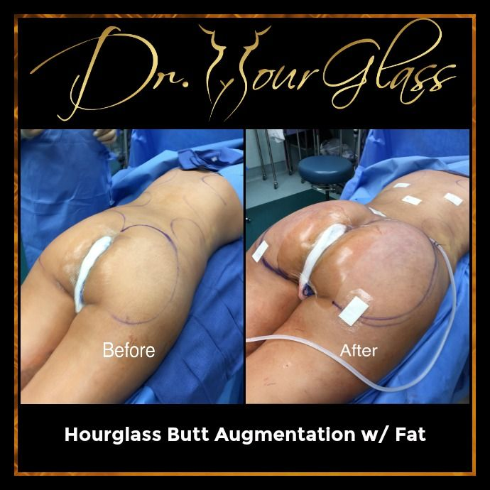 Hourglass Butt Augmentation with fat is one of the best procedures developed by Dr. Cortes. This surgical technique will not only give your behind a great project but will also transform your body into an hourglass shape. So, if you want to boost your confidence to a new level this procedure can help you big time.