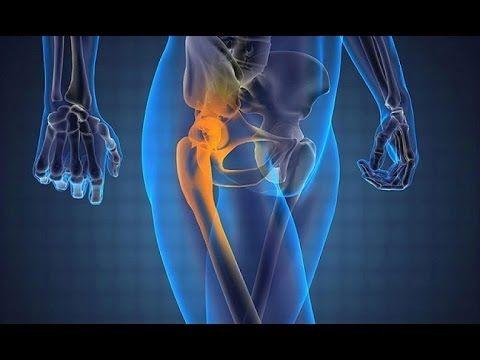 Простые упражнения при коксартрозе, артрите и артрозе. Как помочь тазобе...