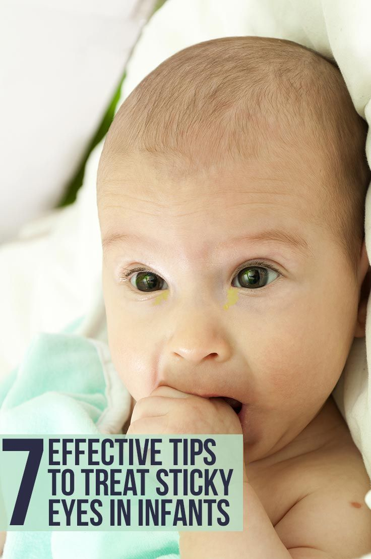 7 Effective Tips To Treat Sticky Eyes In Infants