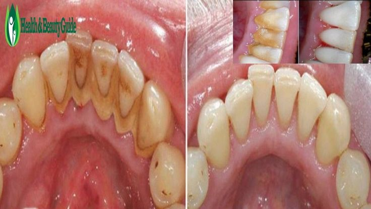 How To Remove Plaque Without going To The Dentist - World's Worst Teeth, Tartar  Removal & Treatment