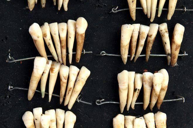 Οι οδοντοστοιχίες που κατασκευάστηκαν από τα δόντια των νεκρών στρατιωτών στο Βατερλό. BBC News Magazine