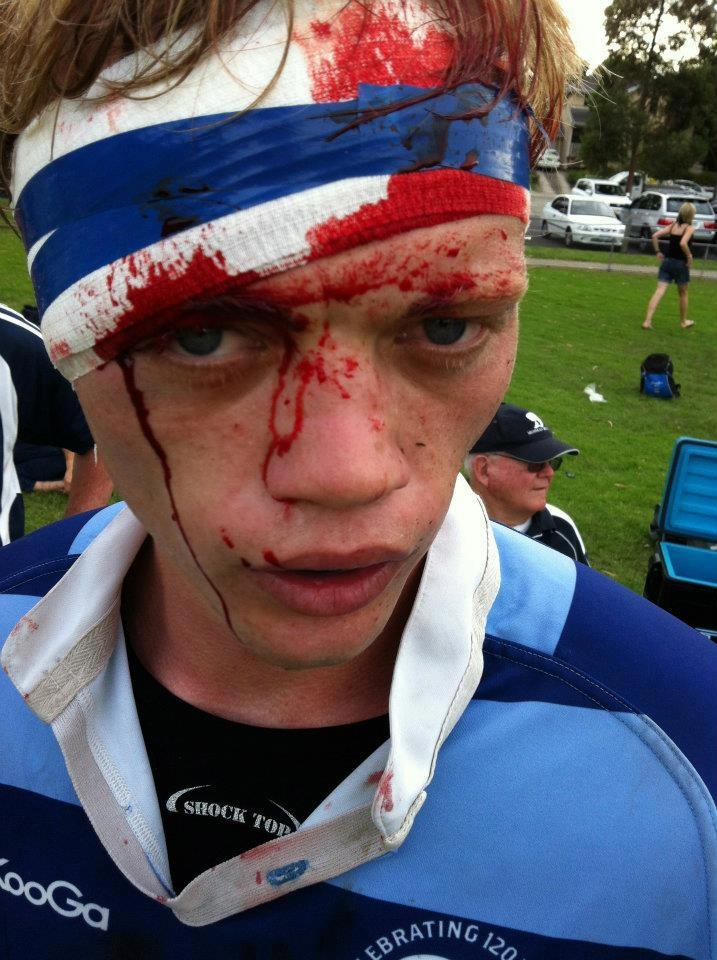 Rugby Vs American Football Injuries