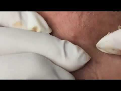 blackheads removal, blackheads in ear, blackheads removal mask, blackheads behind ear, blackheads popping, blackheads on face, blackheads 2017, blackheads dr pimple popper, drpimplepopper, zit, skin, incision and drainage, pimple, how to pop a pimple, drsandralee, blackhead, sandra lee, medical...  https://www.crazytech.eu.org/popping-blackheads-on-the-face-how-to-remove-acne-easy-2/
