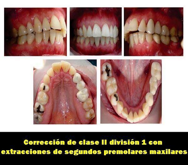 Corrección de clase II división 1 con extracciones de segundos premolares maxilares | OVI Dental