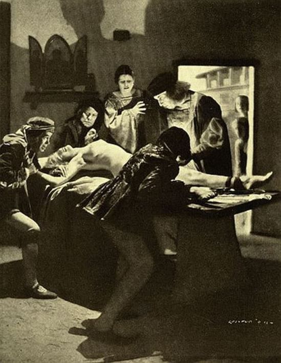 Lejaren à Hiller.  In the XVIth century Giovanni Andrea Dalla Croce performs a successful hysterectomy