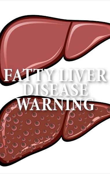 Dr. Oz talked to an expert to find out about Non-Alcoholic Fatty Liver Disease, the latest epidemic that has doctors very worried about the health of many Americans. http://www.recapo.com/dr-oz/dr-oz-diet/dr-oz-non-alcoholic-fatty-liver-disease-hidden-health-risk/