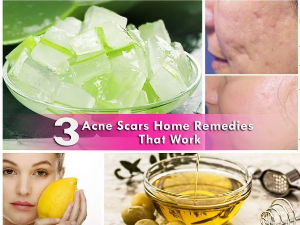 Top 3 Acne Scars Home Remedies That Work
