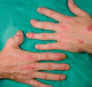 Łuszczycowe zapalenie stawów - Choroby reumatyczne - Reumatologia - Medycyna Praktyczna: Lekarze pacjentom