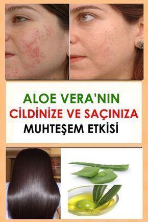 Cilt ve Saç için Aloe Vera Maskesi