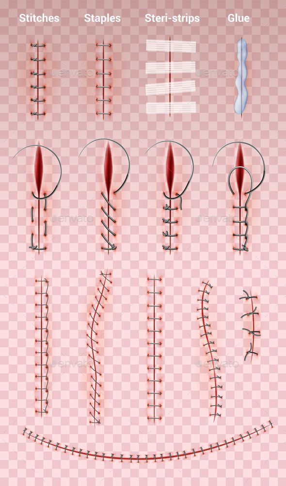 Surgical Suture Stitches Set Surgical Suture Suture Techniques Surgical Stitches