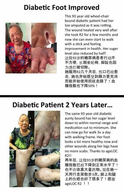 Diabetic patient conditon improved !! After using our ageloc products.