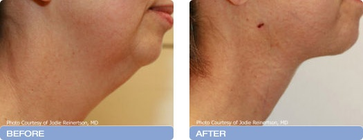 Cool Lipo Before and After Photos: Neck