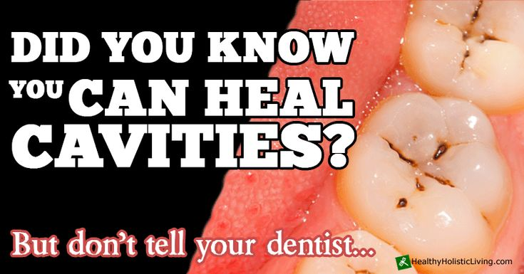 Did you know that you could actually heal cavities? But don't tell your dentist...Over a period of time, if your diet lacks vitamins and minerals from a poor diet and/or contains high levels of phytates, the blood chemistry and the ratio of calcium and phosphorous become out of balance, which results in minerals being pulled from bones, causing tooth and bone loss.