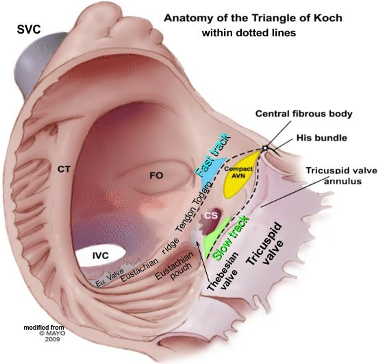 RA Anatomy 1. What border of the triangle of Koch is an extension of the Eustacian ridge? Tendon Todaro 2. The superior apex of the ...