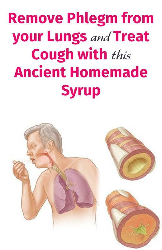 Remove Phlegm from your Lungs and Treat Cough with this Ancient Homemade Syrup