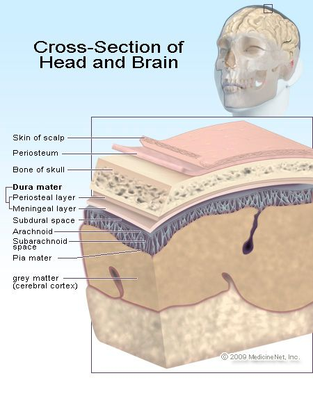 Head Injury. Pinned by SOS Inc. Resources.  Follow all our boards at http://Pinterest.com/sostherapy for therapy resources.