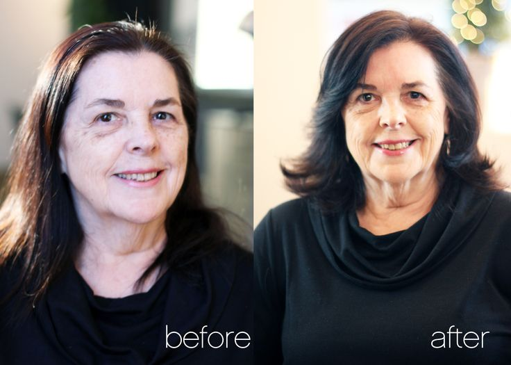 This new look makes our client look 15 years younger!